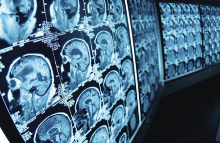 hearing loss ct scan