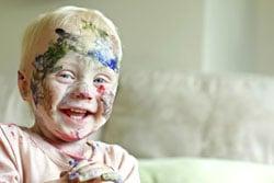 pediatric-hearing-loss-louisville